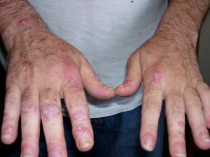 larry-burgans-hands2